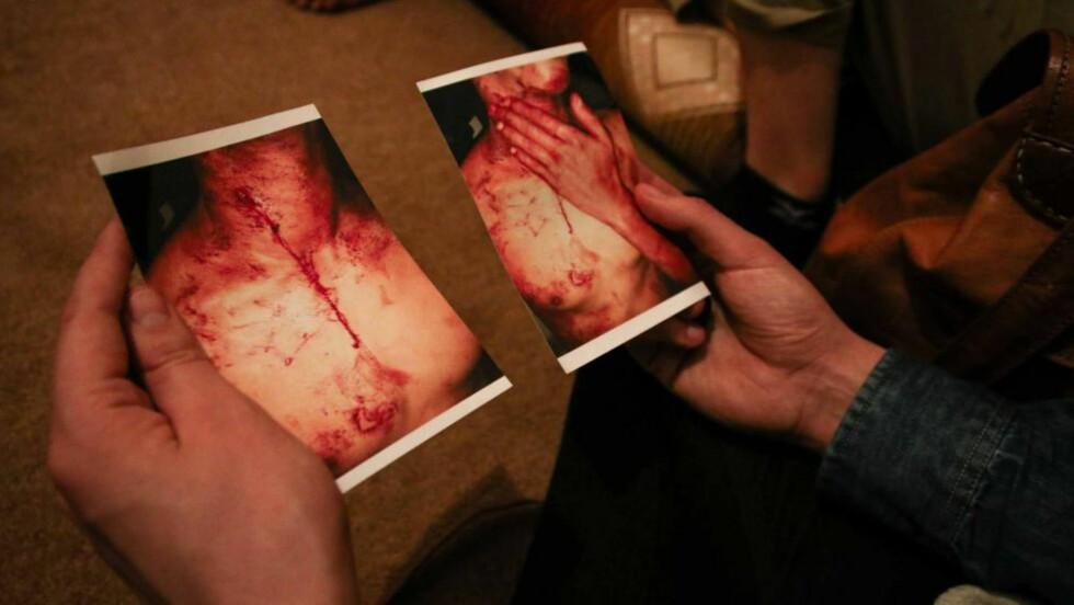 Stukket ned: Bildet viser en ung mann som ble overfalt og stukket i halsen med en saks på gata i El Ajún i Vest-Sahara av ukjent person for et par måneder siden. Han ble fraktet til sykehus og sydd, men døde kort tid etter av indre blødninger. Det er moren hans som har vist frem bildene av sønnen sin.  Foto: Jørn Wichne Pedersen