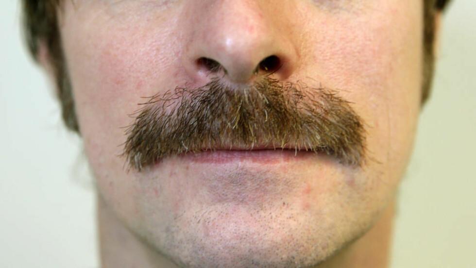 Movember er en årlig månedlig begivenhet der menn lar barten vokse fritt i løpet av måneden november for å skape oppmerksomhet og samle inn penger til veldedige formål.   Foto: Vidar Ruud / NTB scanpix