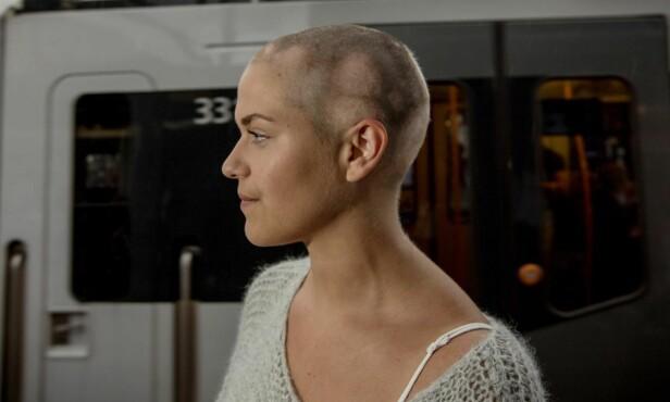 <strong>KOMFORTABEL:</strong> Kristine er ikke redd for å vise fram sitt bare hode, men har kjøpt midlertidig, syntetisk parykk som hun bruker av og til. - En midlertidig, syntetisk parykk koster rundt 10 000 kroner. En parykk med ekte hår kan imidlertid koste opptil 50 000 kroner, litt avhengig av hårlengde, ifølge Kristine. – Så da blir det forbrukslån, ler hun, og påpeker at hun er glad for at hun er komfortabel uten parykken. Foto: Anita Arntzen