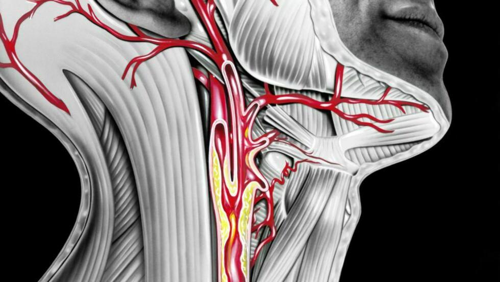 TETT HALSPULSÅRE: Hvis små biter fra forkalkningen løsner, kan de følge blodet opp til hjernen, og forårsake små drypp eller hjerneslag.  ILLUSTRASJON: NTB SCANPIX