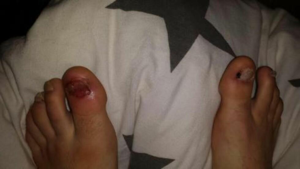SELVSKADING: Bildet viser hvordan Jonas har skadet seg selv på nattestid. Foto: Privat