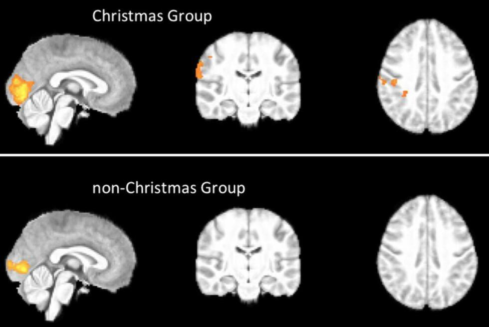 STORE FORSKJELLER: Danske forskere har «funnet» julestemningen i hjernen. Foto: Anders Hougaard