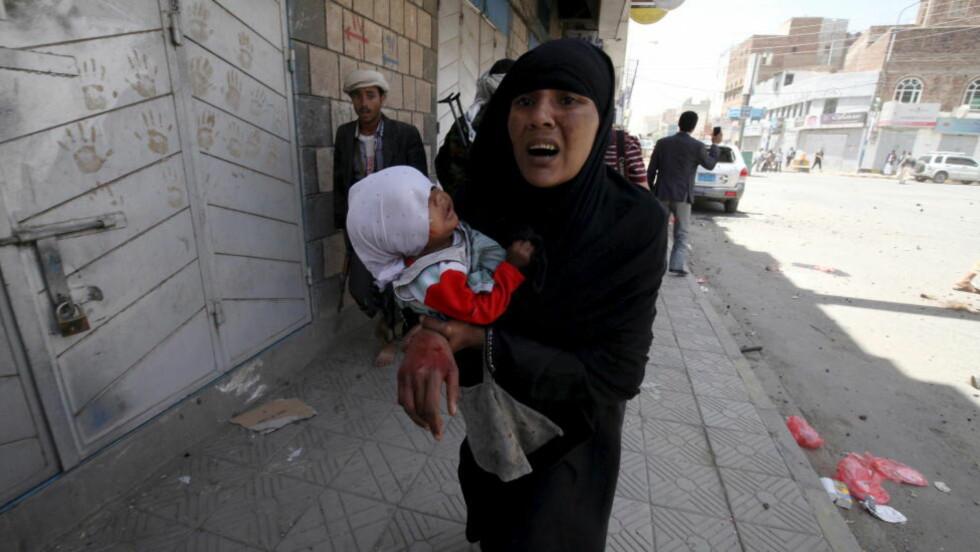 BORGERKRIG:  En skadd kvinne og et lite barn forsøker å komme i trygghet etter at huset til den tidligere presidenten i Jemen, Ali Abdullah Saleh, ble bombet tidligere i år. Mer enn 600 barn og flere tusen mennesker har mistet livet i den pågående borgerkrigen i Jemen. Foto: Mohamed al-Sayaghi / Reuters / Scanpix