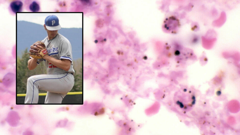 PESTBAKTERIEN: Taylor Gaes (innfelt) ble bare 16 år, etter at han ble smittet av pestbakterien yersinia pestis. De rødrosa feltene i bildet er bakterien slik den framstår i lymfeknuter. Foto: Scanpix NTB / Privat