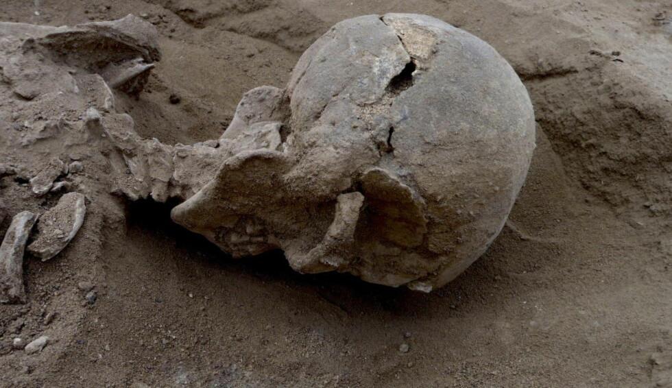 URGAMMEL VOLD:  I 2012 ble levningene etter 27 steinaldermennesker, derav minst seks barn, funnet under åpen himmel langs Turkana-sjøen i Kenya. Tre år etter kan arkeologene som har forsket på dem konkludere med en ting - menneskets ondskap er urgammel. Foto: REUTERS/Marta Mirazon Lahr/Cambridge University