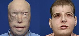«Den mest omfattende ansikts-transplantasjonen noensinne» var en suksess
