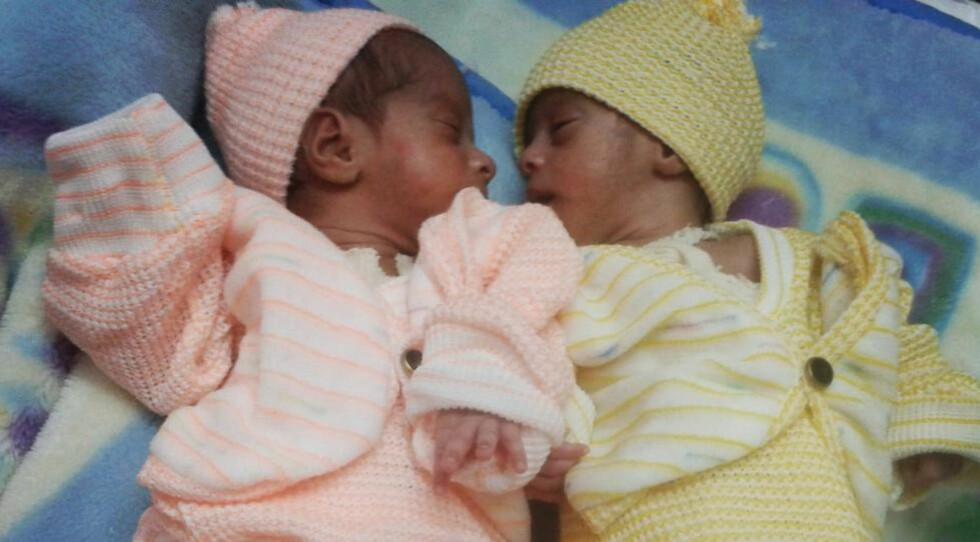 NYFØDTE BARN DØR: Ifølge Leger uten grenser dør 194 000 babyer før de er en måned gammel i Pakistan. Hovedårsaken til dødsfallene er underernæring og mangel på leger og jordmødre. Organisasjonen mener det er en krise som får for lite oppmerksomhet. Foto: Leger uten grenser