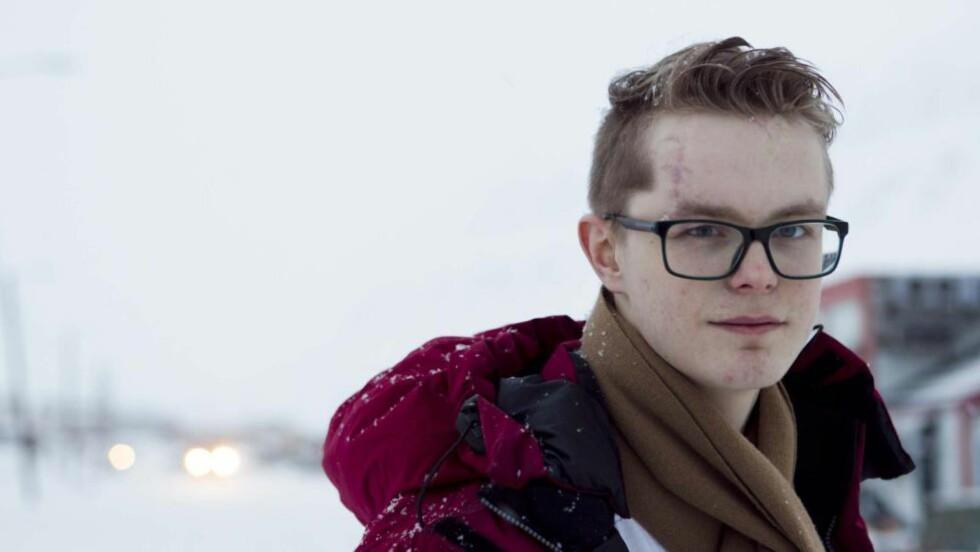 STERK MINNER:  AUF-eren Viljar Hanssen var blant ungdommene som ble skadd på Utøya 22. juli 2011. Foto: Berit Roald, NTB Scanpix.
