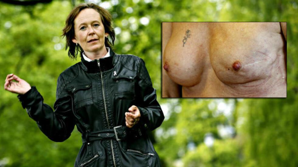 FANT SVULST: Da plastikkirurgen fant en kul i brystet til Katarina Pettersen (43), fjernet han den og fortsatte brystforstørrelsesoperasjonen. Det førte til at Pettersen måtte fjerne hele brystet. Foto: Jacques Hvistendahl