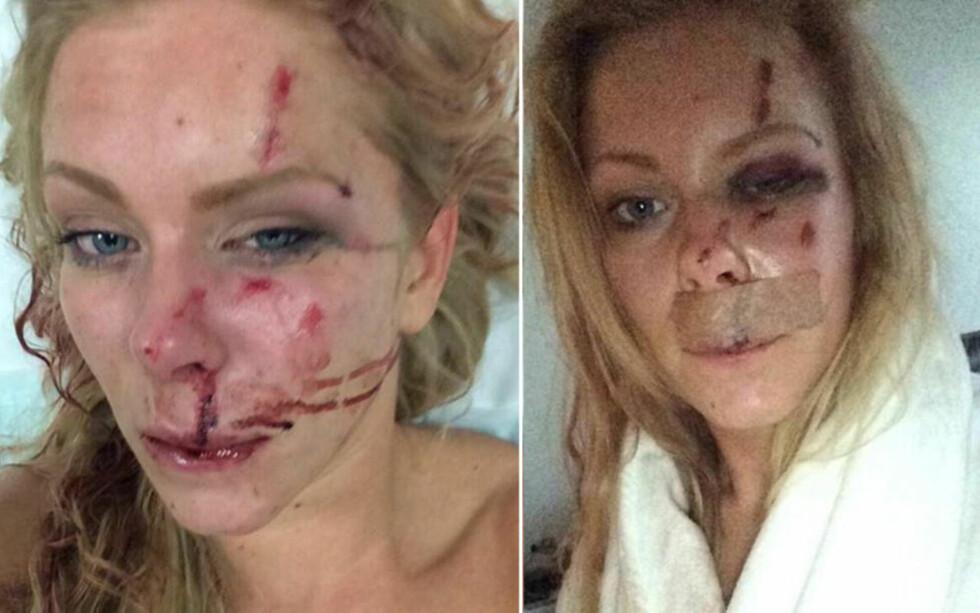 OVERFALT: Nanna Skovmand (23) og hennes kjæreste Mads ble overfalt og slått med sykkellåser da de var på vei hjem etter å ha feiret julaften i fjor. Nå viser det seg at en av gjerningsmennene var utvist fra Danmark to ganger i forkant av angrepet. Foto: Privat / BT.dk