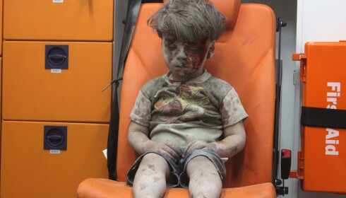 BLE REDDET: Fem-årige Omran Daqneesh ble verdenskjent da han ble hentet ut av De hvite hjelmene da huset til familien ble bombet i august i år. Foto: Mahmud Rslan / Anadolu Agency / Scanpix