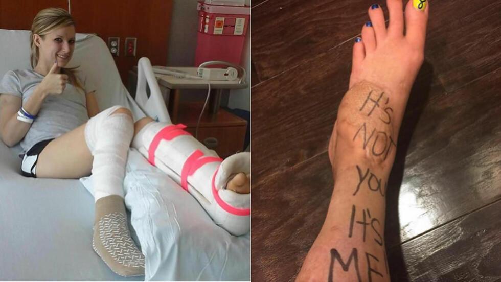 AMPUTASJON:  Den amerikanske maratonløperen Rebekah DiMartino måtte til slutt gi opp kampen for å redde sitt venstre ben, som ble hardt skadet under bombingen av Boston maraton for snart 18 måneder siden. Foto: Facebook.