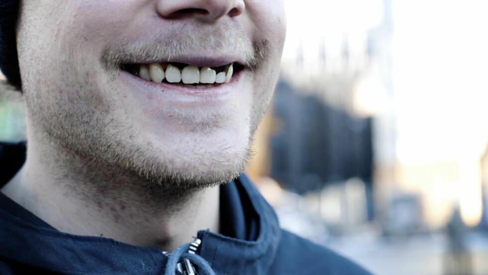 MER SNUS: Stadig flere snuser i Norge. Foto: Melisa Fajkovic / Dagbladet