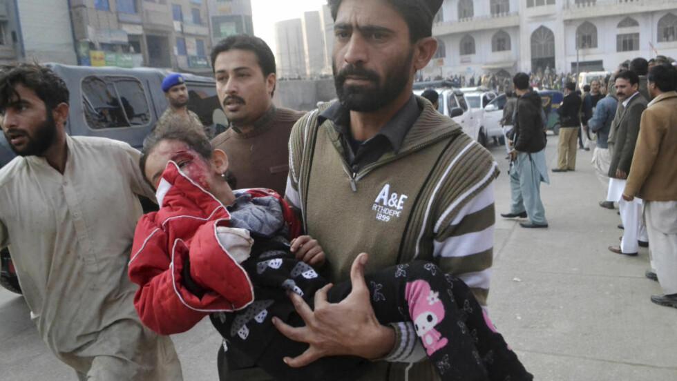 BERGET LIVET:  Denne jenta blir båret til sykehus i Peshawar med et dypt kutt over øyet etter den verste skolemassakren siden Beslan i 2004. Foto: Mohammad Saijad, AP/NTB Scanpix.