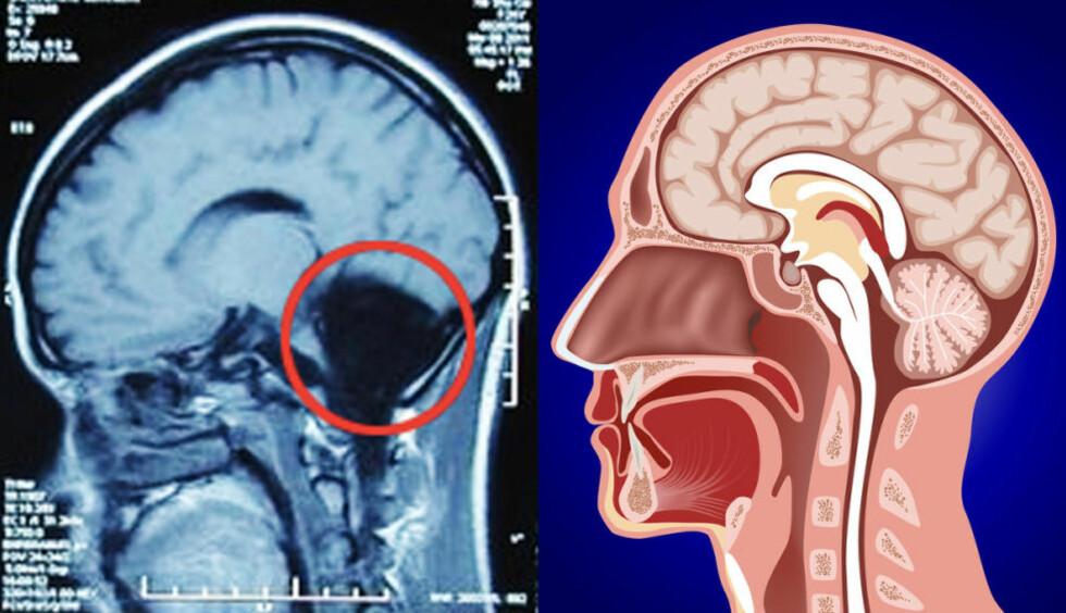 HELT TOMT: Der lillehjernen på den 24-årige kvinnen skulle vært, er det bare et tomrom fylt av hjernevæske. Til høyre anatomien hos en normalt utviklet person. Foto: FENG YU M.FL., COLOURBOX