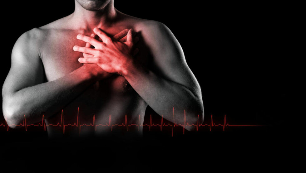 BEDRE PROGNOSER: Omlag 12000 nordmenn får hjerteinfarkt hvert år. På slutten av 70-tallet var en tredjedel av pasientene døde etter 28 dager. I dag er denne prosenten sunket til 16. Mindre røyking, bedre og raskere diagnostisering og bedre behandling nevnes som munlige årsaker. Foto: COLOURBOX