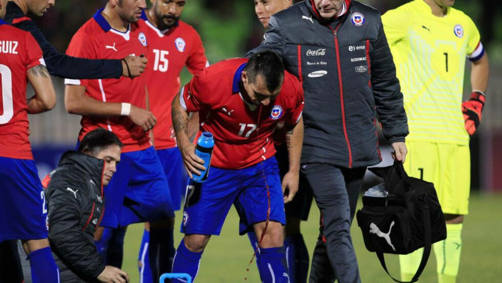 BLOD:  Chile-spiller Gary Medel spytter ut store mengder blod under vennskapskampen mot Peru. FOTO: NTB SCANPIX