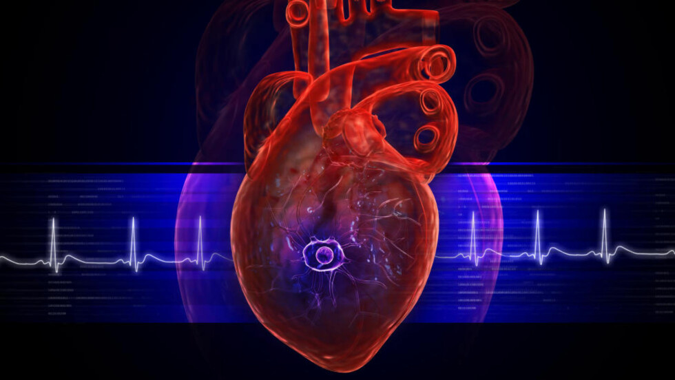 FORSKJELL I OVERLEVELSE:  Det er forskjeller i overlevelse etter akutt hjerteinfarkt ikke bare når det gjelder åpenbare faktorer som alder, men også i sosioøkonomisk bakgrunn. Foto: COLOURBOX