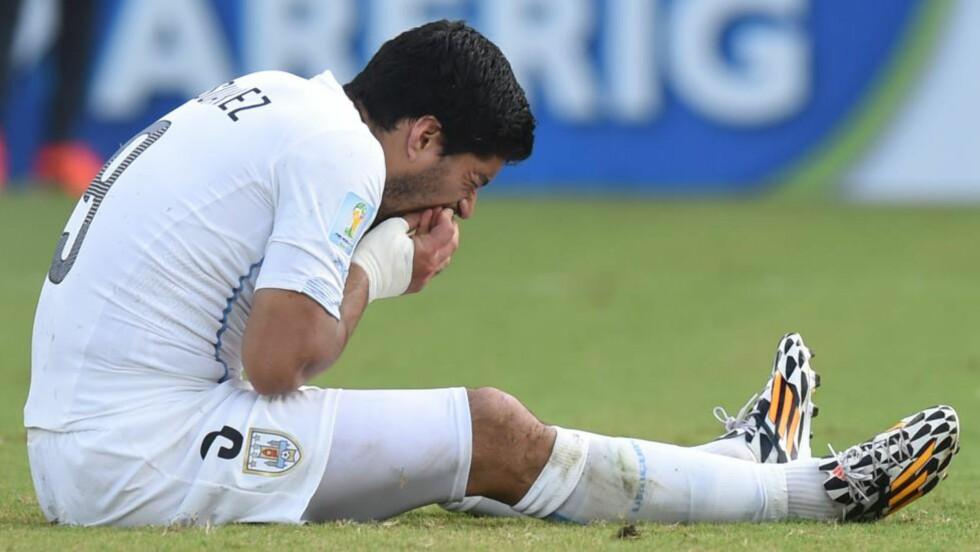 AU:  Det gjør vondt å bite. Til og med for Luis Suarez, som har øvd lenge. Foto: NTB Scanpix