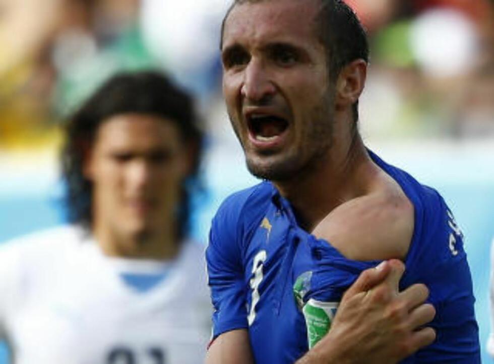 BITEMERKE: Italias Giorgio Chiellini viser fram bitemerkene etter tenna til Luis Suarez. Foto: Reuters / NTB Scanpix