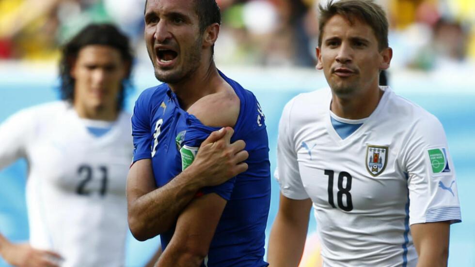 RETT FRA KAMERA:  Giorgio Chiellini viser fram bitemerket i går. FOTO: NTB Scanpix