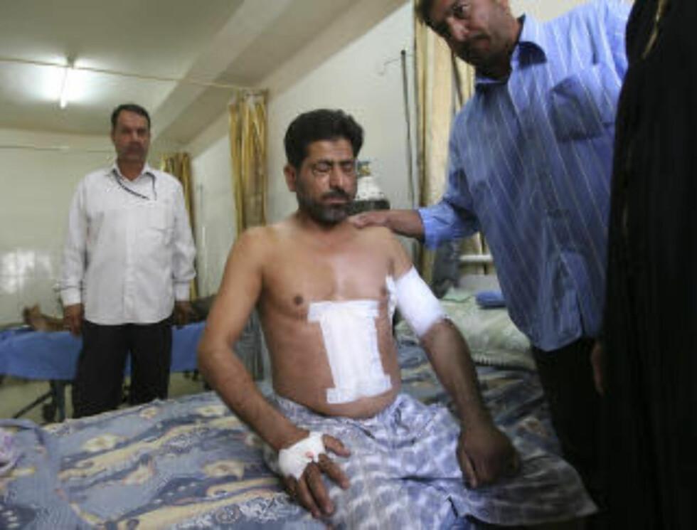 OVERLEVDE: Hassan Jabir ble skutt, men overlevde. Arkivfoto: AP / Khalid Mohammed / NTB scanpix