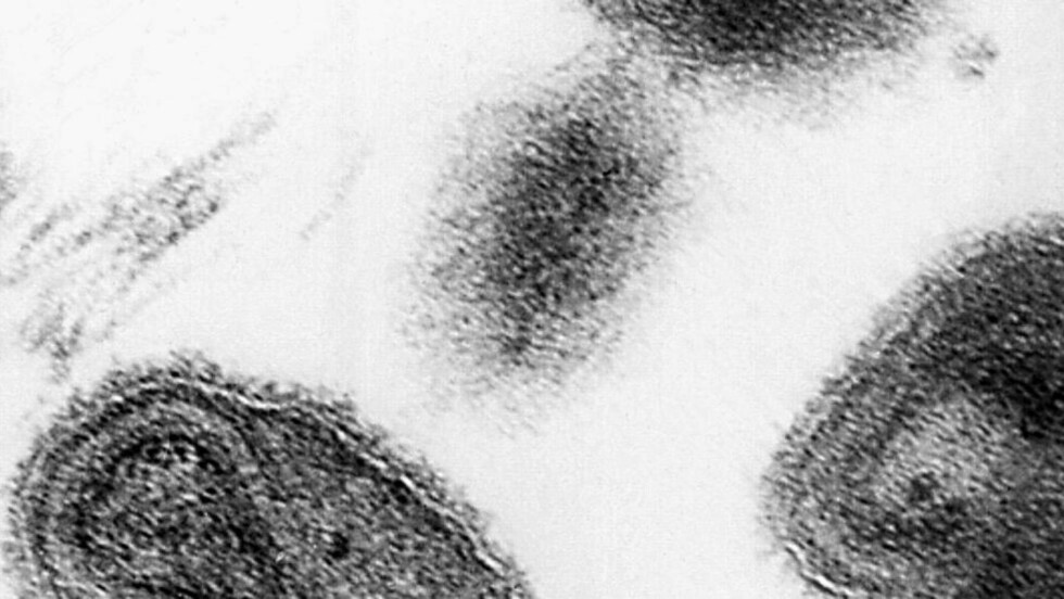 KOPPER: Dette bildet fra 1975 viser viruset kopper. 1. juli i år ble offentlige etater varslet etter at man fant en pappeske med det dødlige viruset inne på National Institutes of Health i Bethesda i Maryland. Foto: AP/CDC/Scanpix