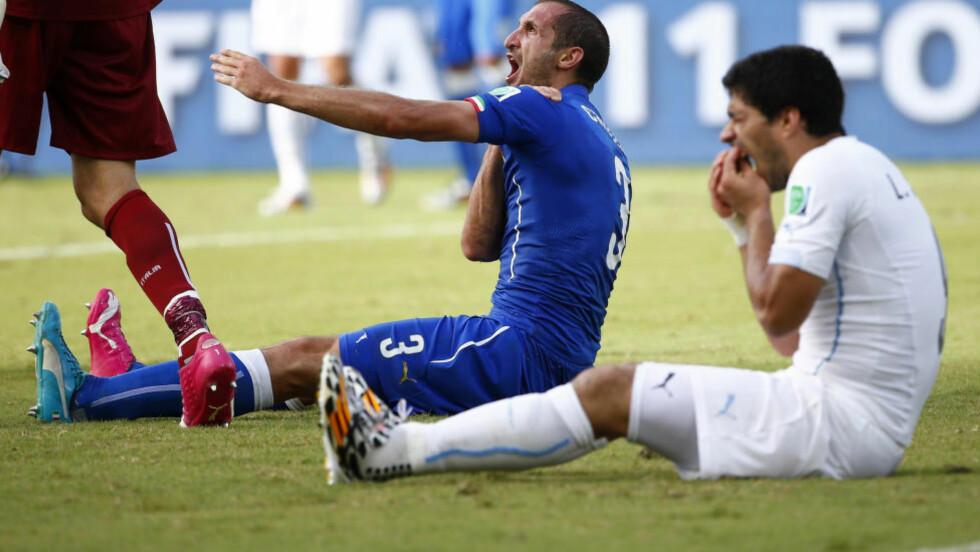AU: Luis Suarez fikk vondt i tennene, mens Giorgio Chiellini fikk tannmerker i skulderen. Suarez fikk fire måneders utestengelse fra all fotball, og må stå over ni kamper for Uruguay. Foto: Tony Gentile, Reuters / NTB Scanpix