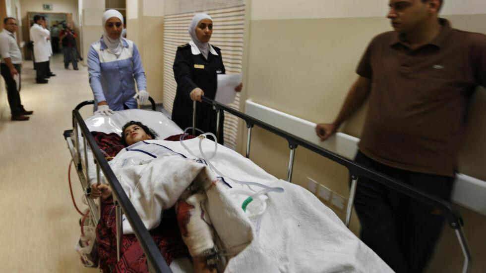 RAMMER SIVILE: En liten jente behandles på Al Hussein Medical Center i Amman i Jordan etter at seks skadde palestinere ble sluppet over grensen for å få behandling i nabolandet.  Foto: REUTERS/Muhammad Hamed/NTB Scanpix