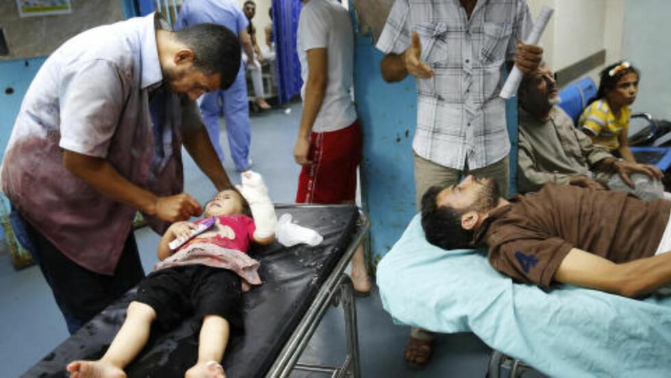 MANGE BARN: Bildet er fra Shifa-sykehuset i natt. Hele familier kommer inn med flere skadde. Mange av dem barn. Gilbert opplever en langt større andel skadde barn nå enn under den forrige israelske offensiven i 2009. Foto: REUTERS/Finbarr O'Reilly/NTB Scanpix