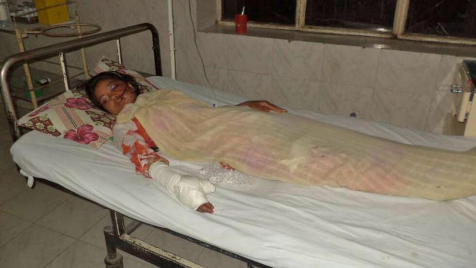 ALVORLIG SKADD: Saba Maqsood ble skutt to ganger, en gang i kinnet og en gang i hånden. Dette bildet ble tatt 5. juni og viser Maqsood i en sykehusseng i Hafizibad. Foto: REUTERS/Yaqoob Shahzad/NTB scanpix