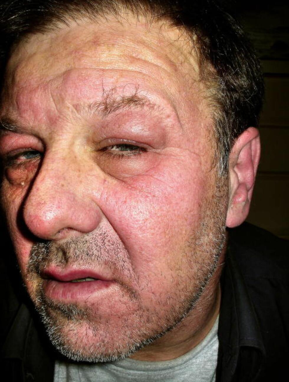 YRKESSYK: Tidligere Ekofisk-arbeider Jan-Erik Tandberg tåler ikke lenger eksponering for kjemikalier. Slik så han ut etter å ha drevet med oppussing og maling for noen år siden.  Foto: Privat
