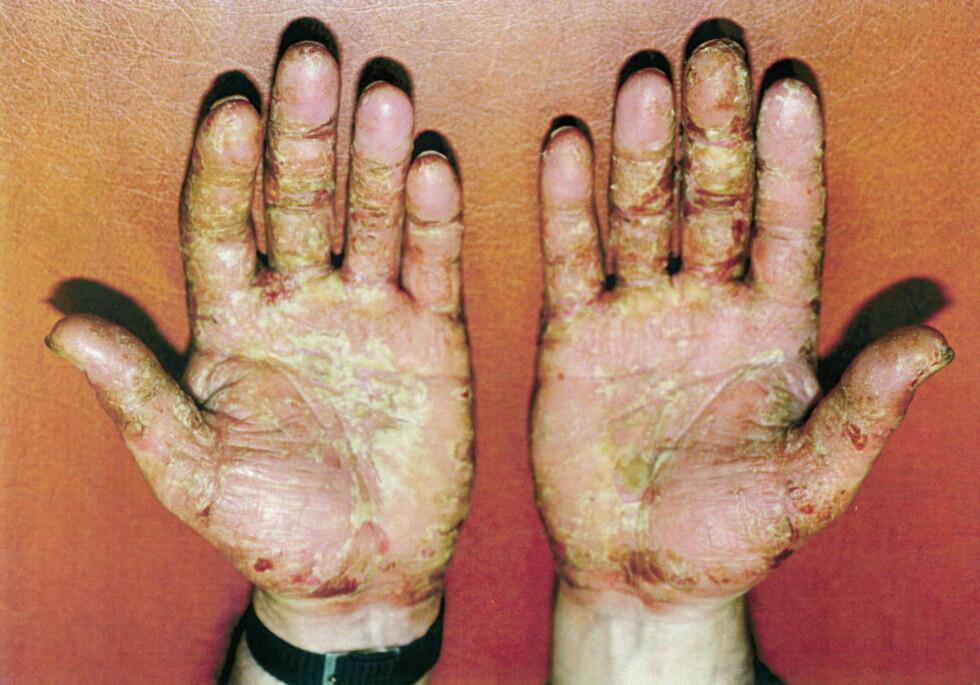 GIFTSKADD: Tidligere Ekofisk-arbeider Jan Terje Biktjørn må holde seg unna oljeprodukter og kjemikalier. Ellers blir han fort slik som dette på hender og andre steder på kroppen.  Foto: Privat