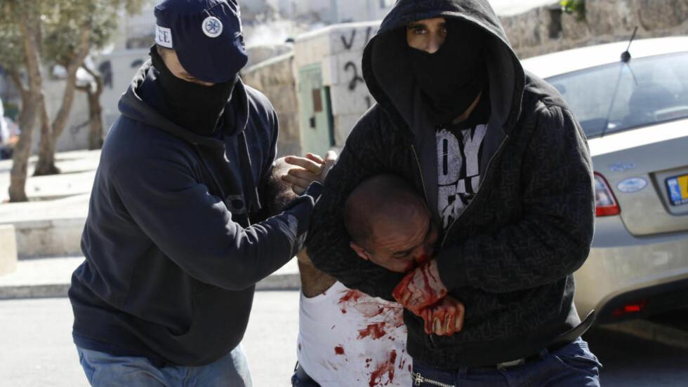 INGEN BØNN:  Israelske sikkerhetsstyrker var i høy beredskap i forkant av fredagsbønnen i Gamlebyen i Jerusalem. Israelsk politi bruker rå makt for å hindre unge menn i å nå fredagsbønnen. Bare palestinske menn over 50 år slippes inn. Her fra et sammenstøt i Øst-Jerusalem i Ras al-Amud. Foto: Ammar Awad / Reuters / NTB Scanpix