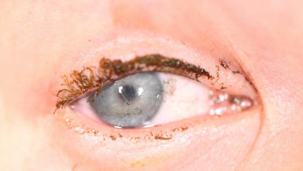 BATTERISKADE:  En 18 år gammel gutt pådro seg øyeskade etter at et effektbatteri eksploderte i ansiktet på ham. Foto: Øyeavdelingen, Haukeland Universitetssjukehus.