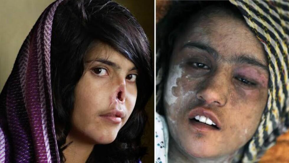 UTSATT FOR FAMILIEVOLD:  Det fryktes at lovforslaget vil føre til at færre kvinner tørr å stå opp mot og anmelde vold og overgrep. Disse bildene viser to av Afghanistans mest kjente saker på familievold: Sahar Gul (15) t.h. ble holdt innesperret i kjelleren og grusomt torturert etter hun nektet ektemannen å presse henne inn i prostitusjon i 2011. Hun tok saken sin til retten, men svigerfamilien ble frikjent. Etter Bibi Aisha t.v. (18) flyktet fra svigerfamilien på grunn av familievold, ble hun holdt nede mens de sammen med Taliban-menn kuttet av henne ørene og nesen. Bildet av Aisha ble kåret til World Press Photo of the Year i 2010. Foto: Jodie Bieber / AP / NTB Scanpix og Shah Marai / AFP Photo / NTB Scanpix