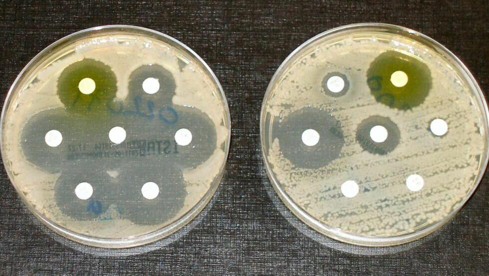RESISTENS: Bakteriene til høyre er resistente mot de fleste typer antibiotika. - At vi på verdensbasis kjører på med antibiotika i så store mengder, gjør at bakteriene blir mer resistente, sier overlege Astrid Louise Wester ved Folkehelseinstituttet. Foto: Dr Graham Beards/Creative Commons/CC BY-3.0.