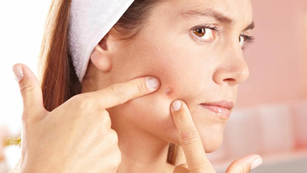 GIR P-PILLEN DEG FLERE KVISER? Nei, ikke vanligvis, hovedregelen er at p-piller reduserer problemet med uren hud, forteller eksperten.