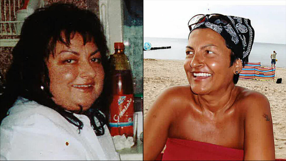 SJELDENT SYNDROM: Da helsevesenet endelig skjønte at Marlena Bjerkeseth led av Cushings syndrom, hadde det gått nær fire år. Foto: Privat