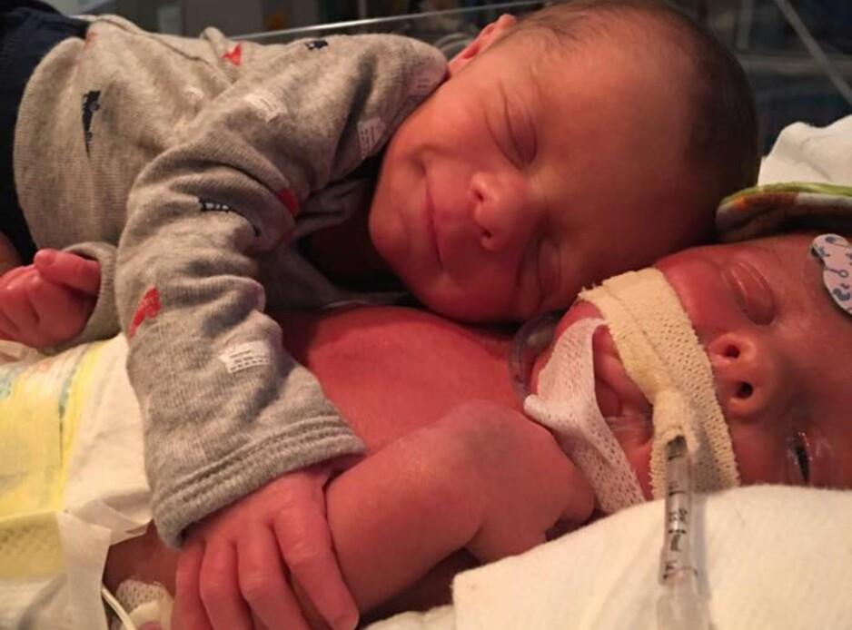 KLEM: Mason gir den dødssyke broren sin en god klem da de møttes for første gang elleve dager etter fødselen. Foto: Privat