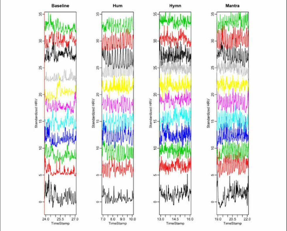 SYNKRONISERES: Hver korists hjerterytme er uttrykt med hver sin farge. Før sangen starter er ikke hjerterytmene synkronisert, men det endrer seg raskt når sangen begynner. Bilde fra forskningsrapporten.