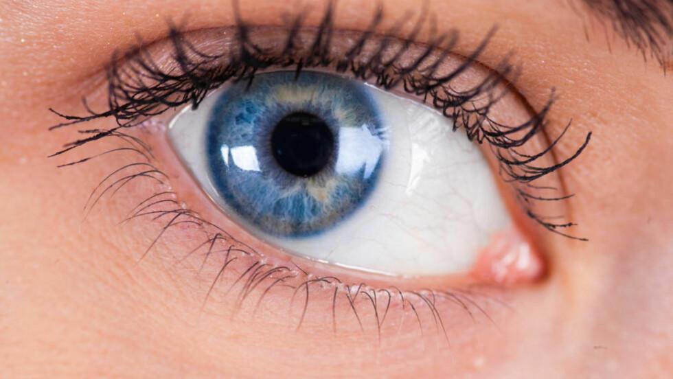 SVÆRT SMÅ DELER:  Den nye kroppsdelen, som befinner seg i øyets hornhinne, er ikke mer enn 15 mikrometer tykk. Alle foto: Colourbox