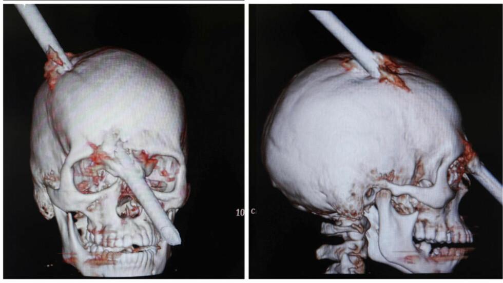 OVERLEVDE DETTE: Bildet viser hvordan CT-scanningen av brasilianske Eduardo Leite i Rio de Janeiro 17. august i år. Leite overlevde etter å onsdag ha fått en to meter lang stang gjennom hodet. Foto: Ricardo Moraes / Reuters