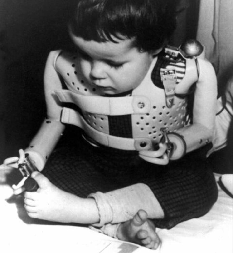 OVER 10 000 BARN RAMMET: Denne tyske jenta er et av over 10 000 barn som ble født med misdannelser som følge av thalidomid. Foto: AP / NTB SCANPIX