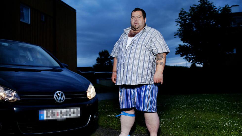 NEKTET ERSTATNING: Tom Oppegaard ble nektet full erstatning av forsikringsselskapet etter en trafikkulykke. Foto: Agnete Brun / Dagbladet