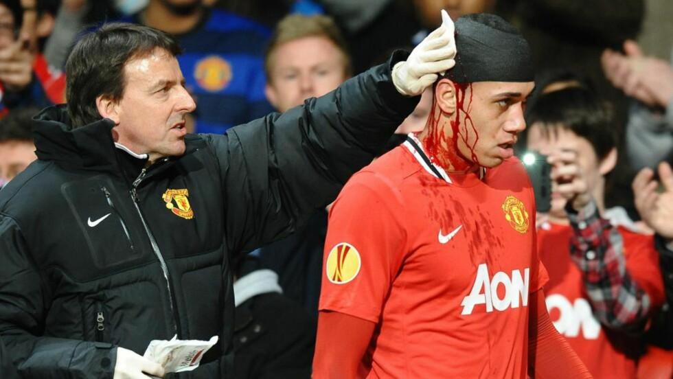 FORFULGT AV UFLAKS: Manchester United-manager Alex Ferguson føler med Chris Smalling etter at det skadeskutte forsvarstalentet pådro seg et brudd i foten og er satt ut av spill i ti uker. Foto: AFP PHOTO/PAUL ELLIS/NTB scanpix