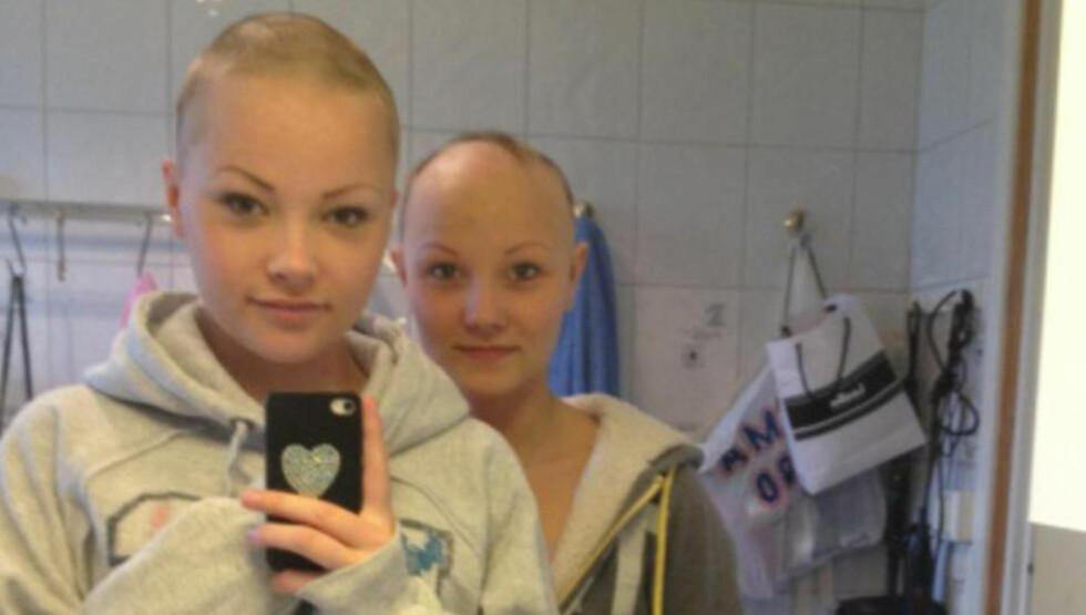 BARBERTE HODET: Linda Krokmo (19) barberte hodet i sympati med bestevenninna Anniken Balto (16), som er rammet av den sjeldne sykdommen alopecia totalis. Foto: Privat