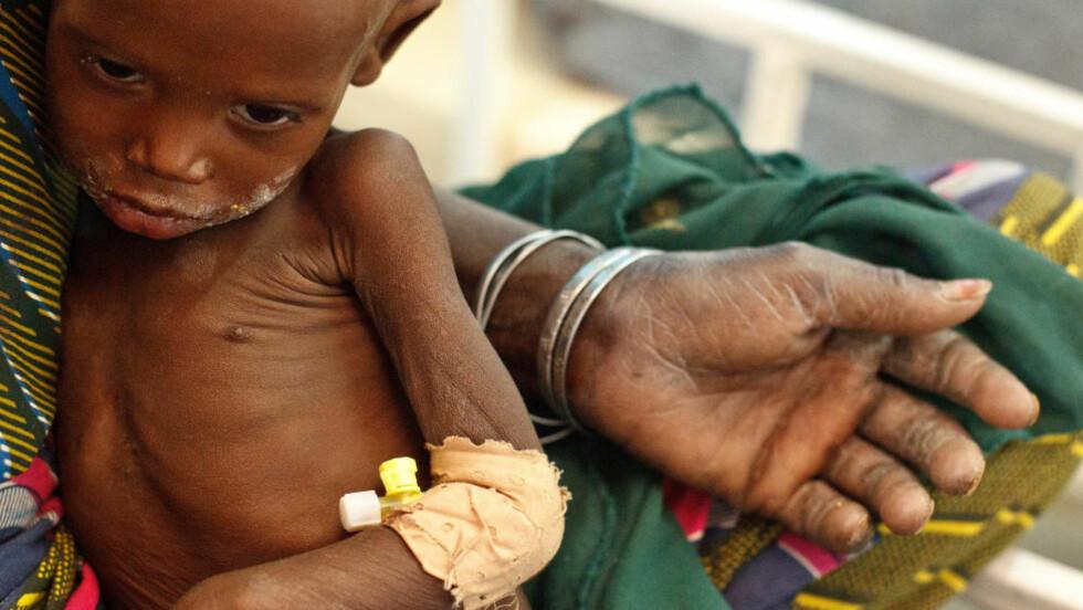 SULT: 19 måneder gamle Raya Kabirou sitter på fanget til bestemor på sykehuset i Mirrah i Zinder-regionen i Niger. Raya er ett av nærmere en million barn som lider av akutt underernæring i Sahel. På sykehuset får hun hjelp Foto: UNICEF/ OlivierAsselin / Scanpix