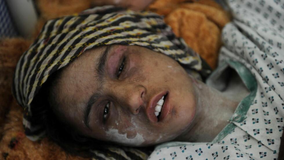 TORTURERT:  Historien om den 15 år gamle afghanske jenta fikk mye internasjonal og nasjonal oppmerksomhet, og det har nå ført til at tre medlemmer av hennes manns familie har blitt dømt for mishandling. Foto: SHAH MARAI / AFP PHOTO/ NTB SCANPIX