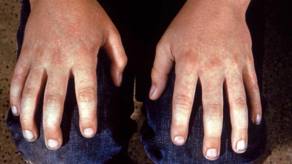 DEN FEMTE BARNESYKDOM: Også store barn kan få den femte barnesykdom. På hendene til denne ungdommen vises det røde, marmorerte utslettet som er typisk for denne sykdommen.  Foto: Centers for Disease Control and Prevention (CC-BY-SA), WikIpedia Commons
